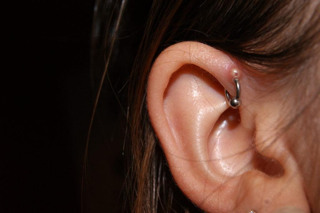 cheloide su di un piercing - Blog BHills