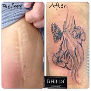 tatuare cicatrici